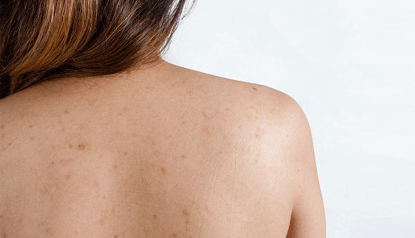 Herbal Body Care sẽ giải quyết các nốt mụn lưng, thâm giúp các chị em