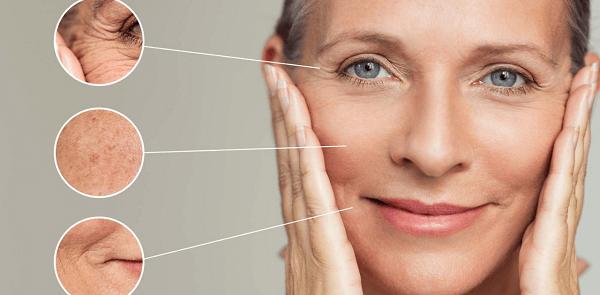 Herbal Face Lift giải quyết các nếp nhăn vùng mắt, khóe miệng
