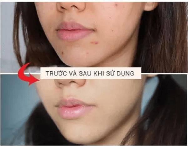 Before - After sau khi dùng Rapid Relief Acne Spot Treatment