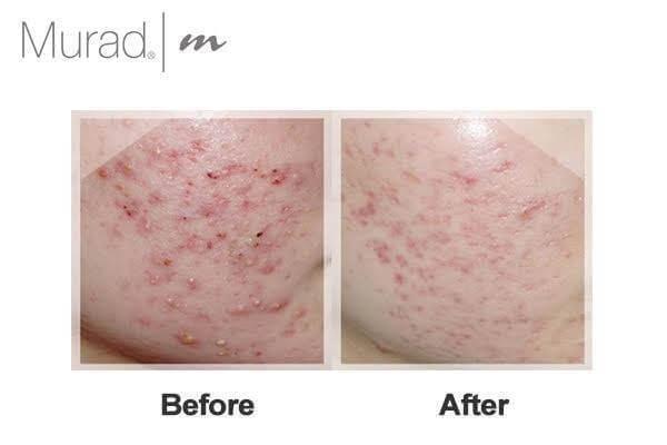 Kết quả thực tế của khách hàng sau khi sử dụng kem trị mụn tầng sâu Murad