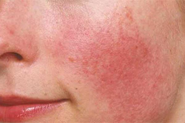 Ngứa, mẩn đỏ, bong tróc chính là những dấu hiệu của làn da bị kích ứng