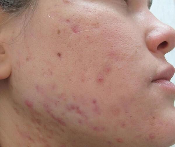 Mụn nếu điều trị sai cách sẽ dẫn đến thâm và sẹo
