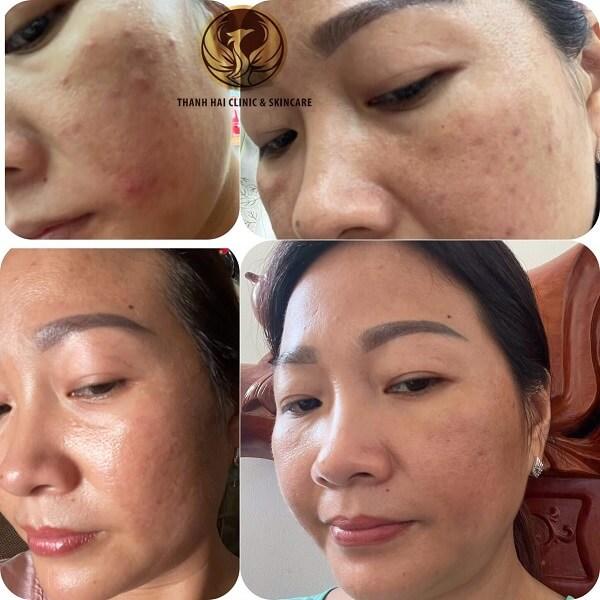 Kết quả điều trị của khách hàng tại Thanh Hải