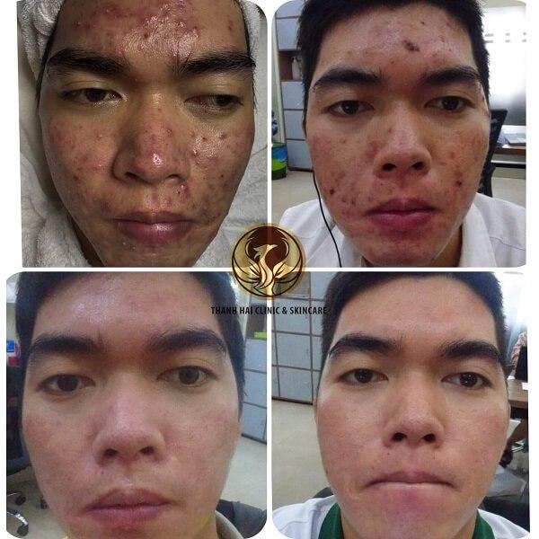 Kết quả trị mụn sau 3 tháng tại Thanh Hải