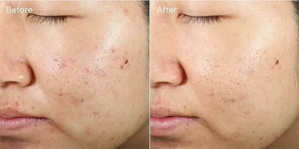 Khách hàng tại Thanh Hải sau 3 tuần sử dụng Murad Invisi Scar Resurfacing Treatment