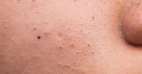 Nếu để lâu rất dễ dẫn đến tàn nhang, thâm và sẹo rỗ