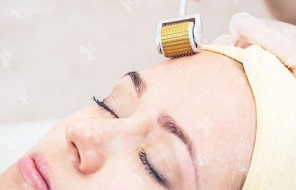 Những đầu kim tác động lên da tạo vết thương giả