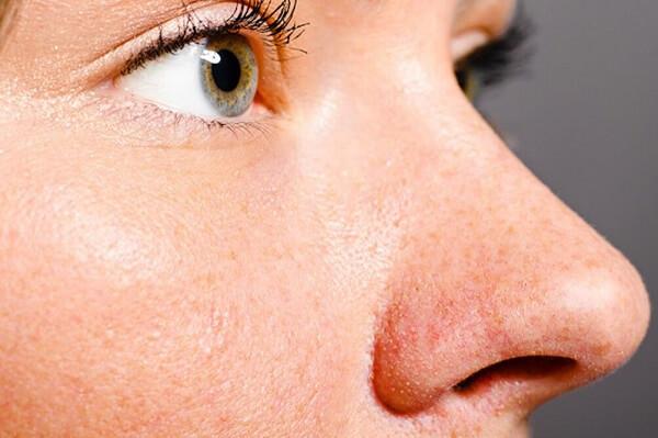 Di truyền cũng là 1 trong những nguyên nhân gây ra tình trạng lỗ chân lông to