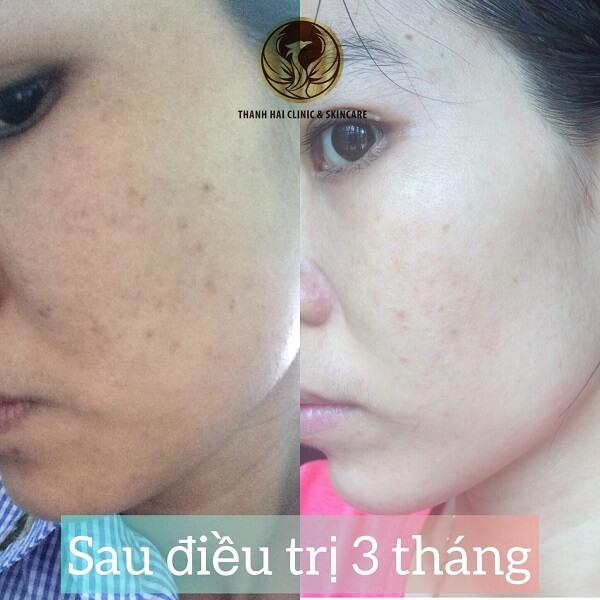 Kết quả sau 1 liệu trình trị mụn tại Thanh Hải Clinic & Skincare