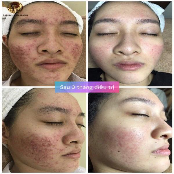 Kết quả của 1 khách hàng da bị nhiễm Corticoid và điều trị tại Thanh Hải
