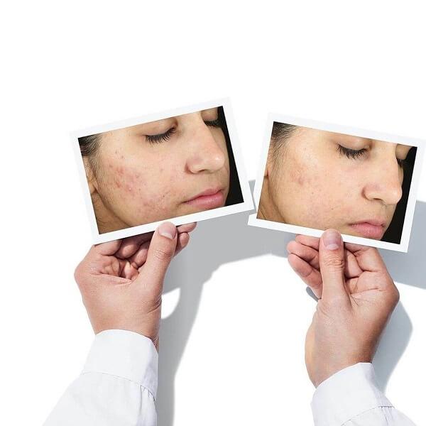 Nếu không điều trị mụn sớm sẽ dẫn đến thâm mụn và sẹo rỗ