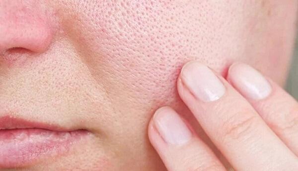 Lỗ chân lông to rất dễ dẫn đến tình trạng mụn