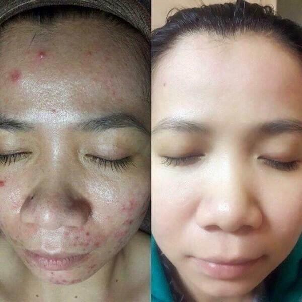 Mụn được cải thiện hơn 90% sau khi chị Huyền điều trị tại Thanh Hải