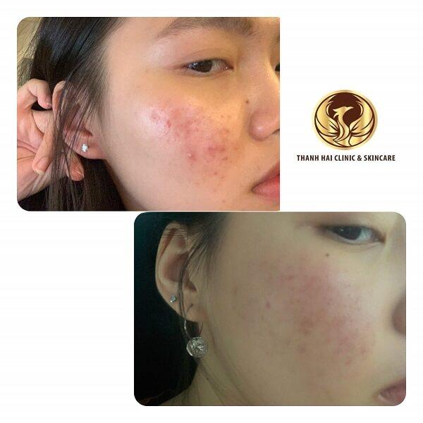 Sau 1 tháng điều trị của khách hàng tại Thanh Hải Clinic & Skincare
