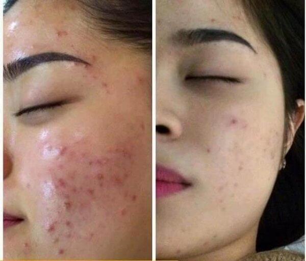 Mụn đã thuyên giảm khoảng 60% sau khi chị Mai điều trị 2 tháng tại Thanh Hải